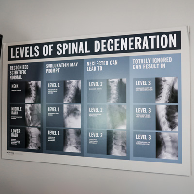 Chiropractic Columbus OH Level of Spinal Degeneration